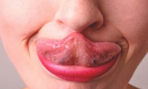 <thrive_headline click tho-post-11824 tho-test-95>4 Ways Your Tongue Can Alert You to Health Problems</thrive_headline>