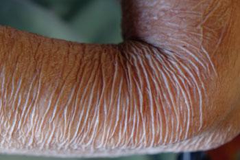 wrinkly arm skin