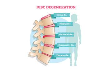 Illustration on Disk Degeneration prevent back pain