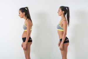 side by side of woman with bad posture and good posture